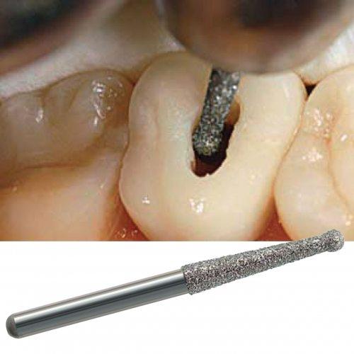 126-126-Endodontics-NTI