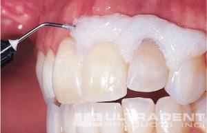 16-3-teeth-ULTRADENT