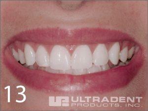 18-2-hd13-ULTRADENT