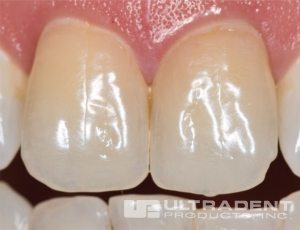 19-6-before-ULTRADENT