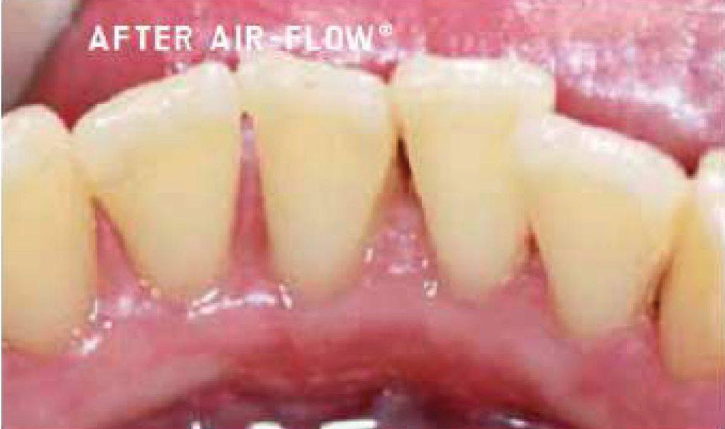 230-3-AirFlow-EMS
