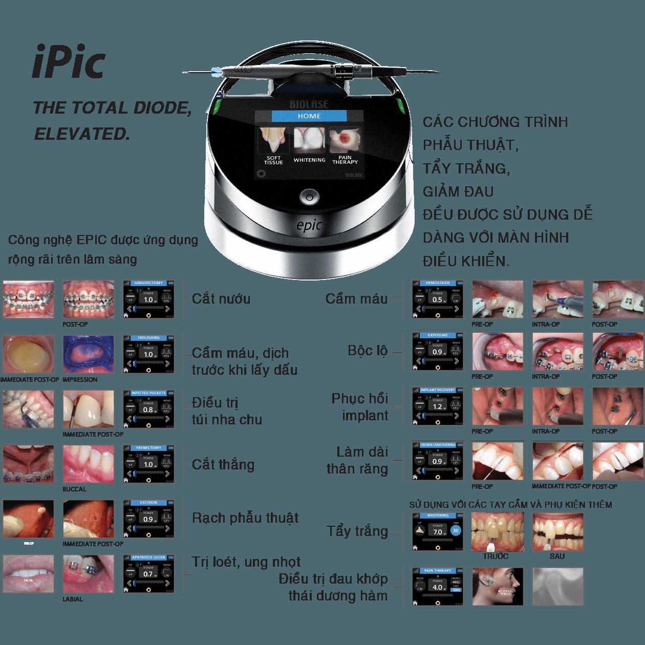 244-4-IPic-BIOLASE