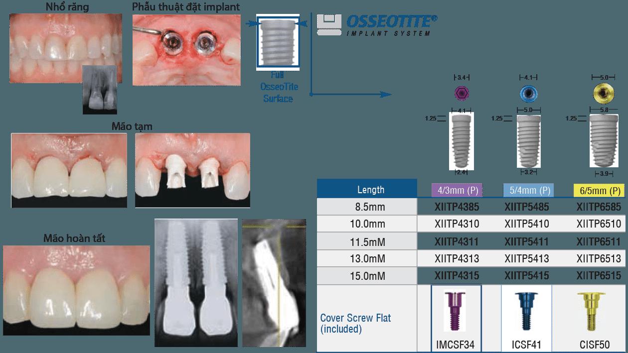248-2-Implant-3I