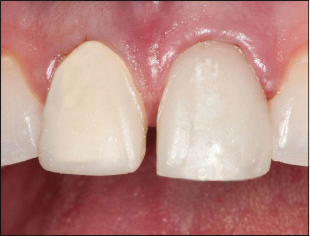 38-4-ClearTempLC-ULTRADENT