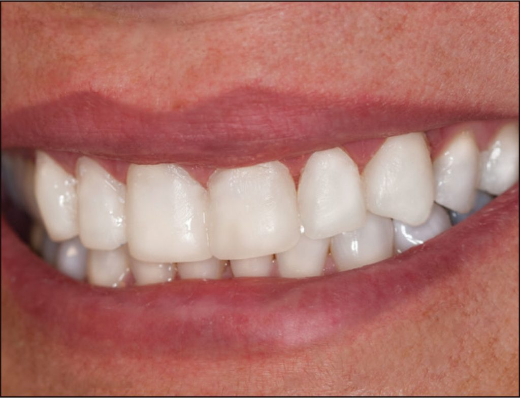 38-5-ClearTempLC-ULTRADENT