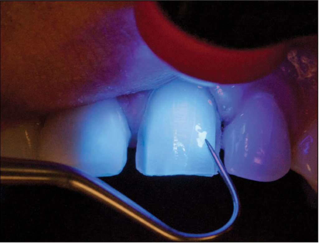 38-7-ClearTempLC-ULTRADENT