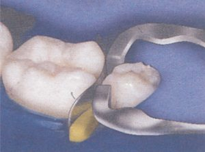 51-14-Omni-matrix-sectional-ULTRADENT