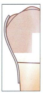 51-15-Omni-matrix-sectional--new-ULTRADENT