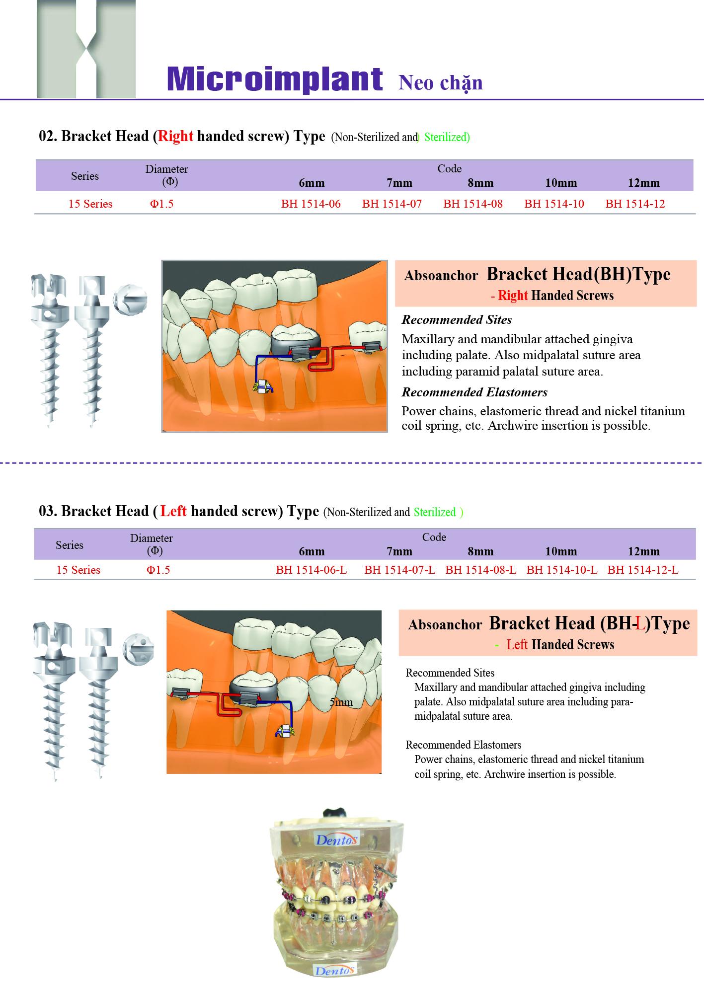 74-1-Implant-DENTOS