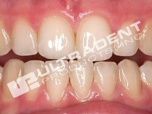8-7_Opalescence-Boost-Clinical-Before-Amanda-Lundberg