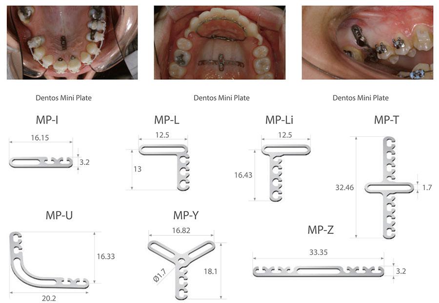MicroImplant 14