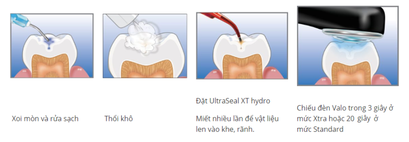 UltraSeal XT hydro