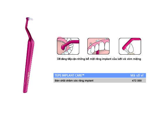 bàn chải đầu hình vòm chăm sóc răng implant-01