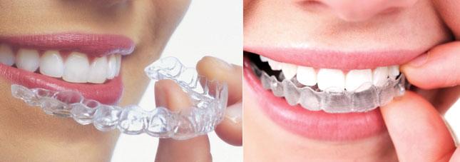 essix plastic