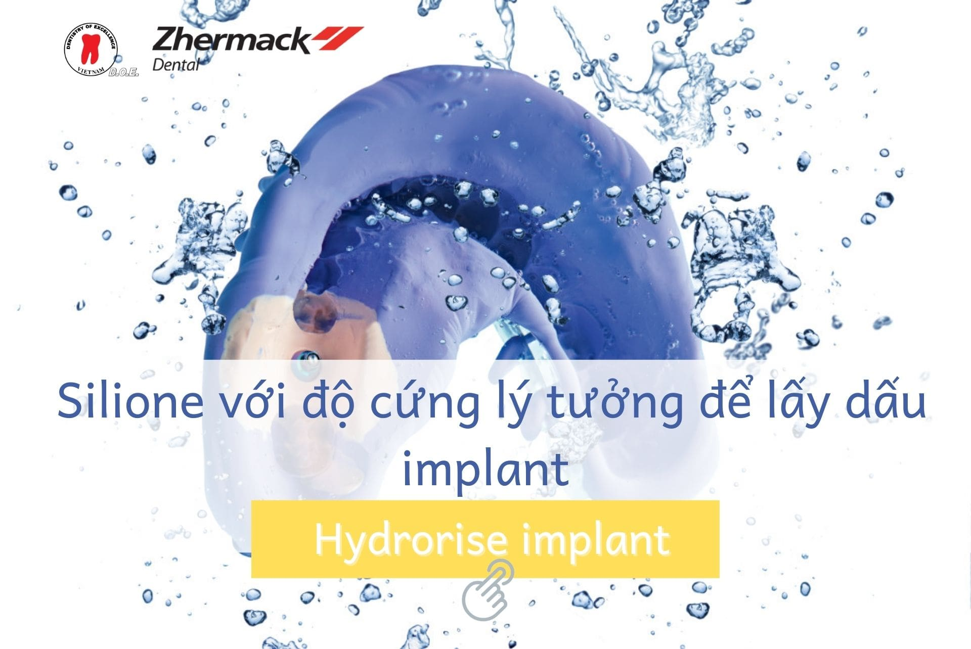 hydrorise-implant-lay-dau-implant