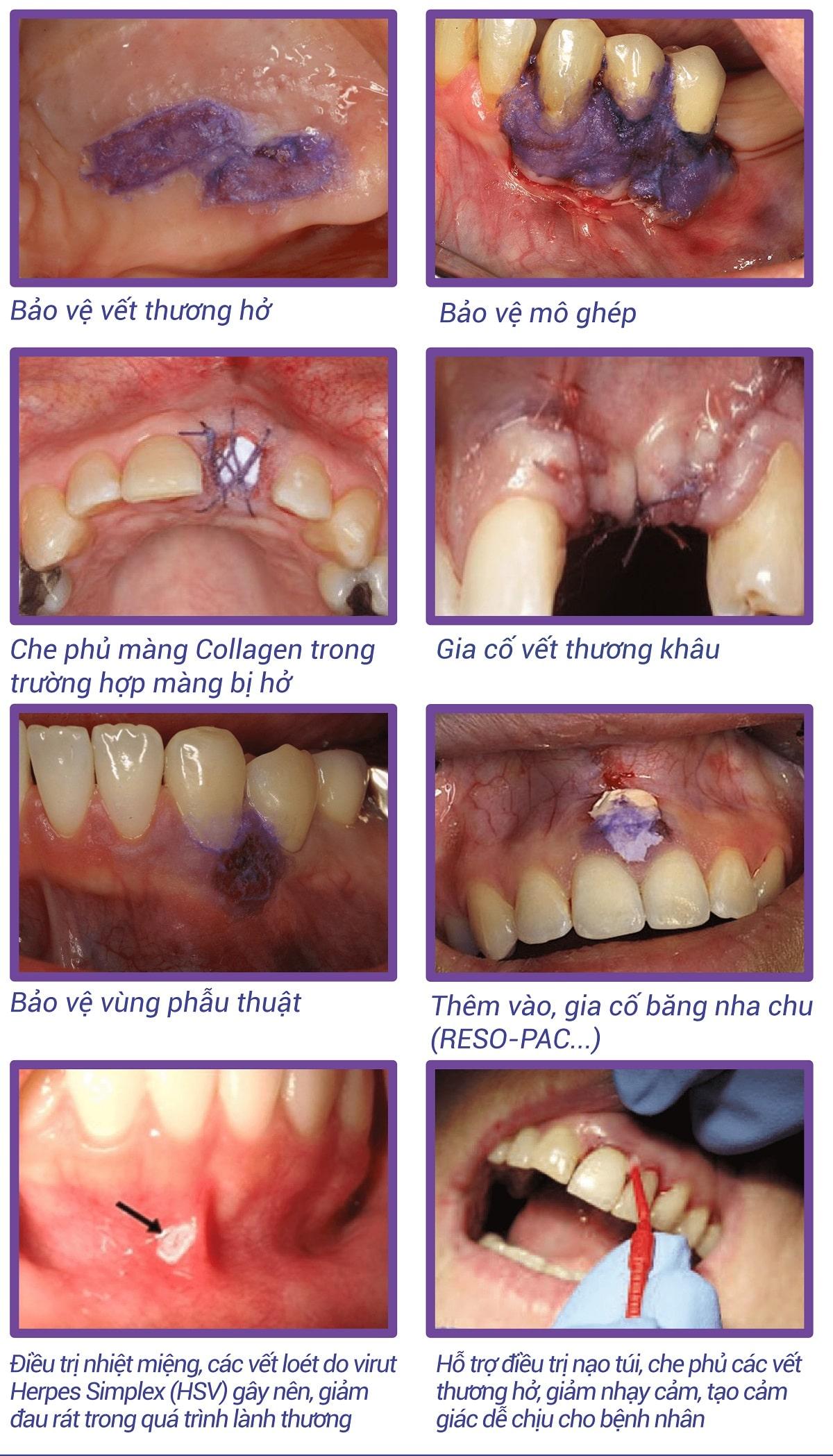 Chỉ định của keo dán phẫu thuật nha khoa PeryAcryl