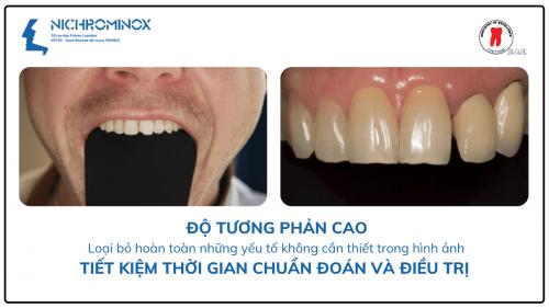 banh miệng màu đen chính hãng NICHROMINOX