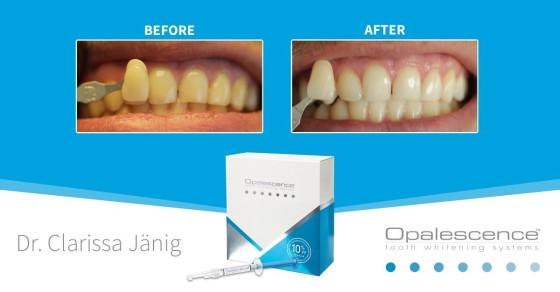ultradent tẩy trắng răng opalesence