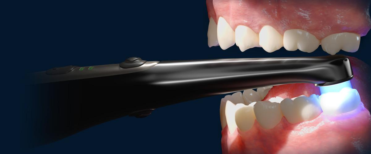 Đèn trám Valo Grand có khả năng tiếp cận tới răng sau